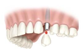Implantologia, cos'è?